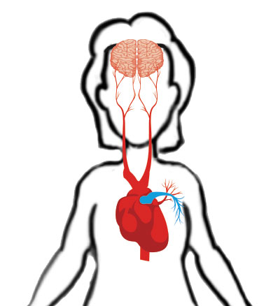 Atrial Fibrillation trigger area graphic
